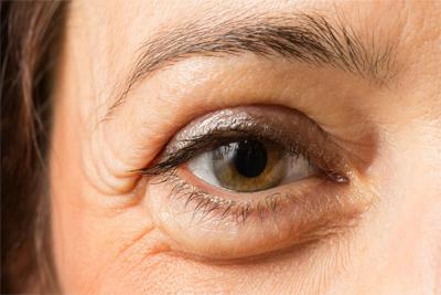 Mejores Contornos de Ojos Para Bolsas